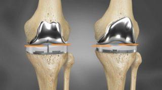 knee-replacement-surgeon-fortis-hospital-vasant-kunj-dr-dhananjay-gupta