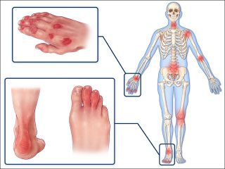 The Basics of Psoriatic Arthritis