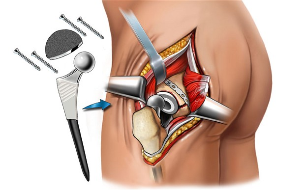 Hip Replacement Revision Surgery