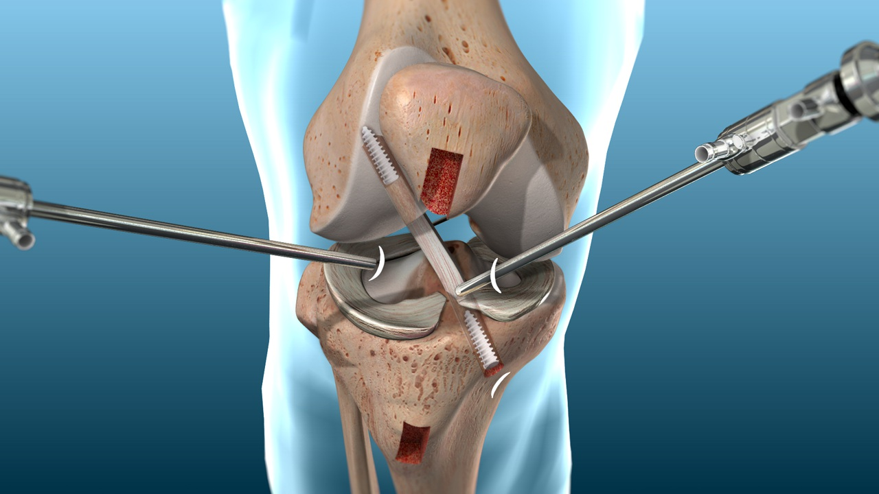 FAQ about ACL Reconstruction Surgery