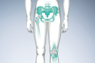 joint-replacement-surgery