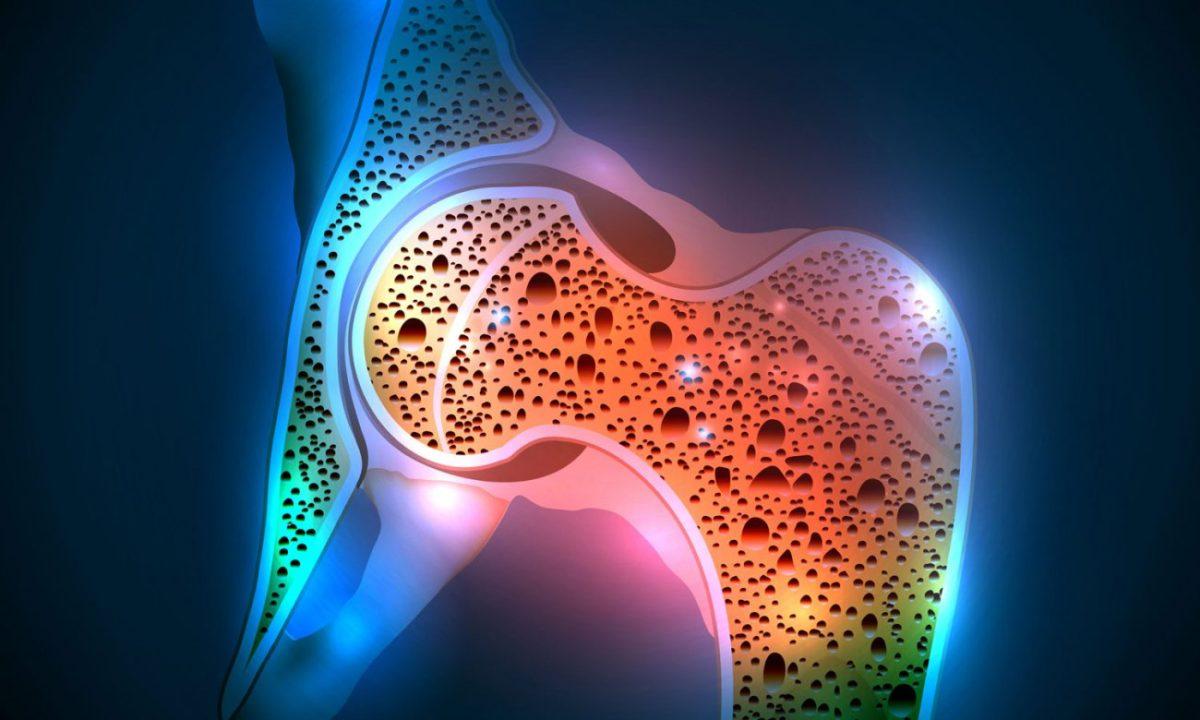 osteoporosis-1200x720.jpg